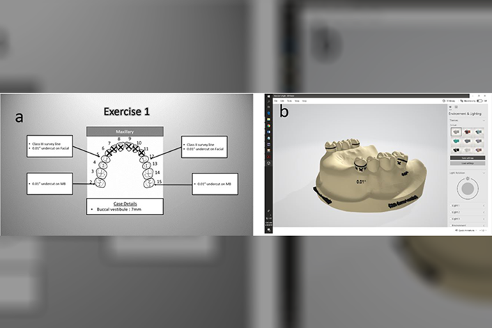 Virtual RPD models vs  2D Drawing - News | American College of